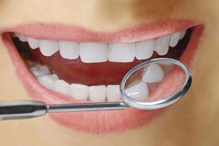 tambal gigi,gigi,cek gigi,berlubang