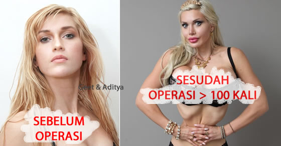 model,obsesi,pixee fox,operasi