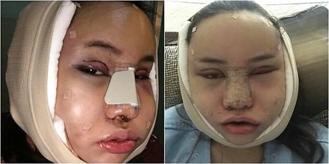 2. Beberapa saat setelah menjalani operasi plastik tahap awal