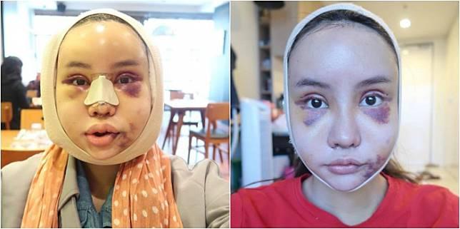 3. Wajah Piya sempat membengkak satu minggu setelah operasi, tapi menurutnya rasanya tidak sakit