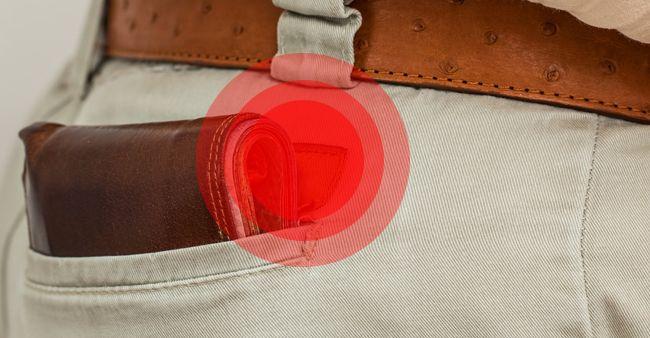 Wallet-neuropathy, bahaya mengantongi dompet di saku belakang celana