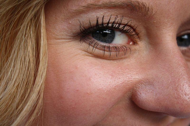 Salah satu tanda stress di wajah adalah munculnya lingkaran hitam di bawah mata