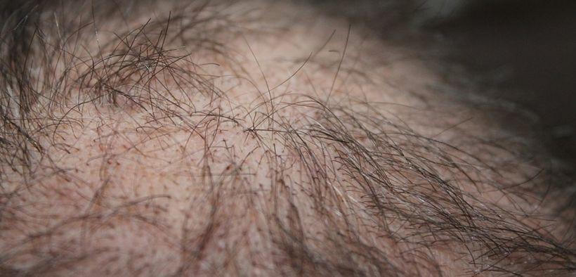 Rambut rontok adalah salah satu tanda stress