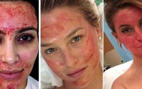 """Hati- hati! Sudah Dua Orang Tertular HIV Setelah Jalani Facial """"Vampir"""""""